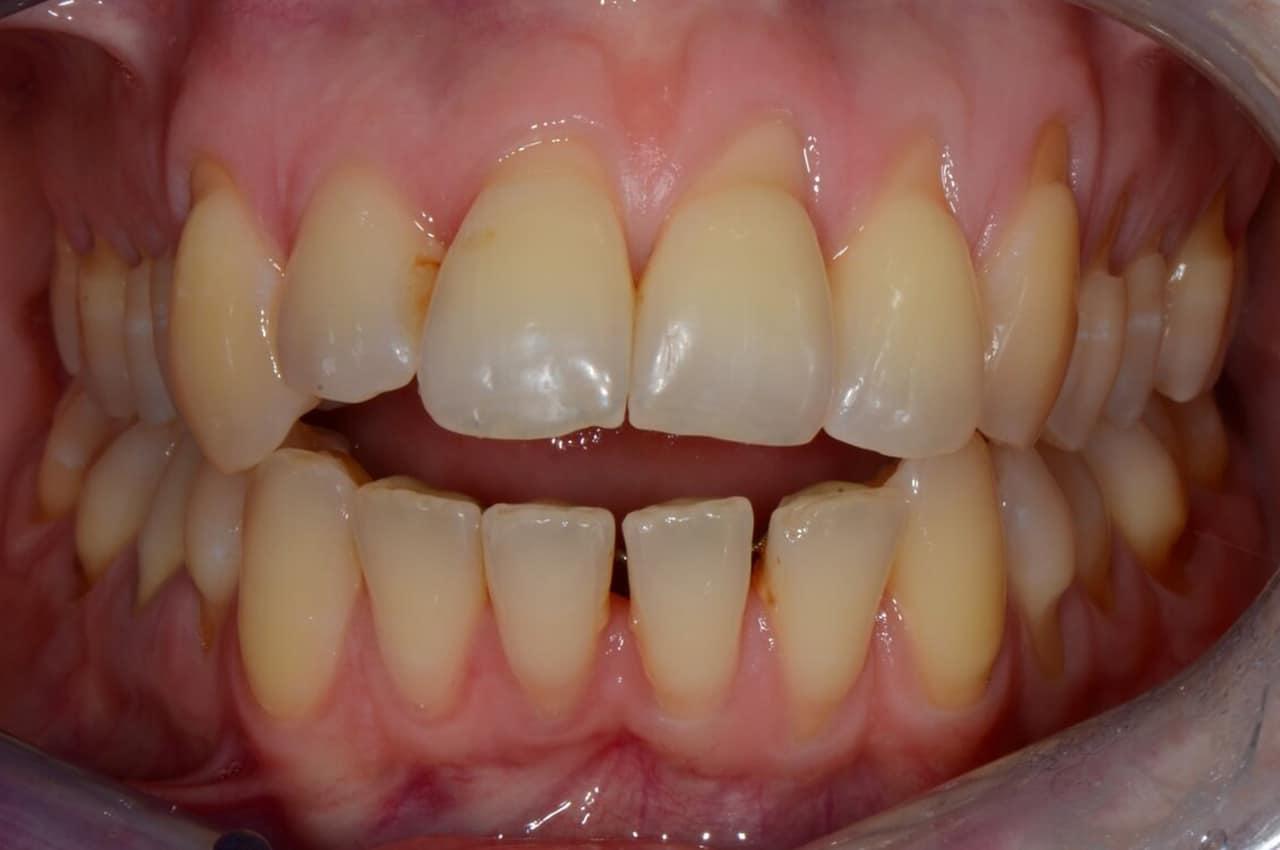 Correggere il Morso Aperto Dentale con l'Ortodonzia Invisibile