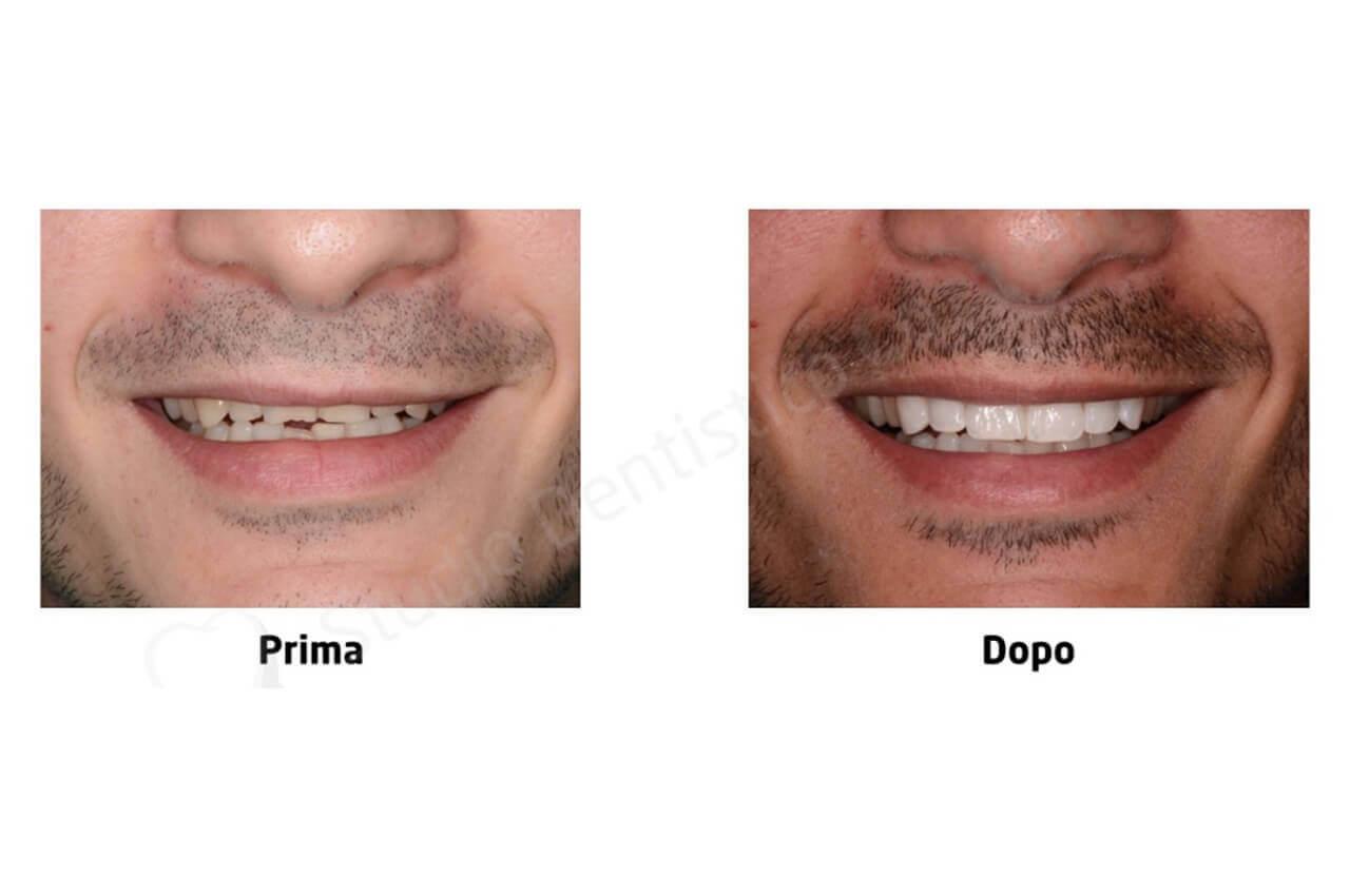 Risoluzione di usura dentaria e morso coperto con faccette in disilicato di litio.015