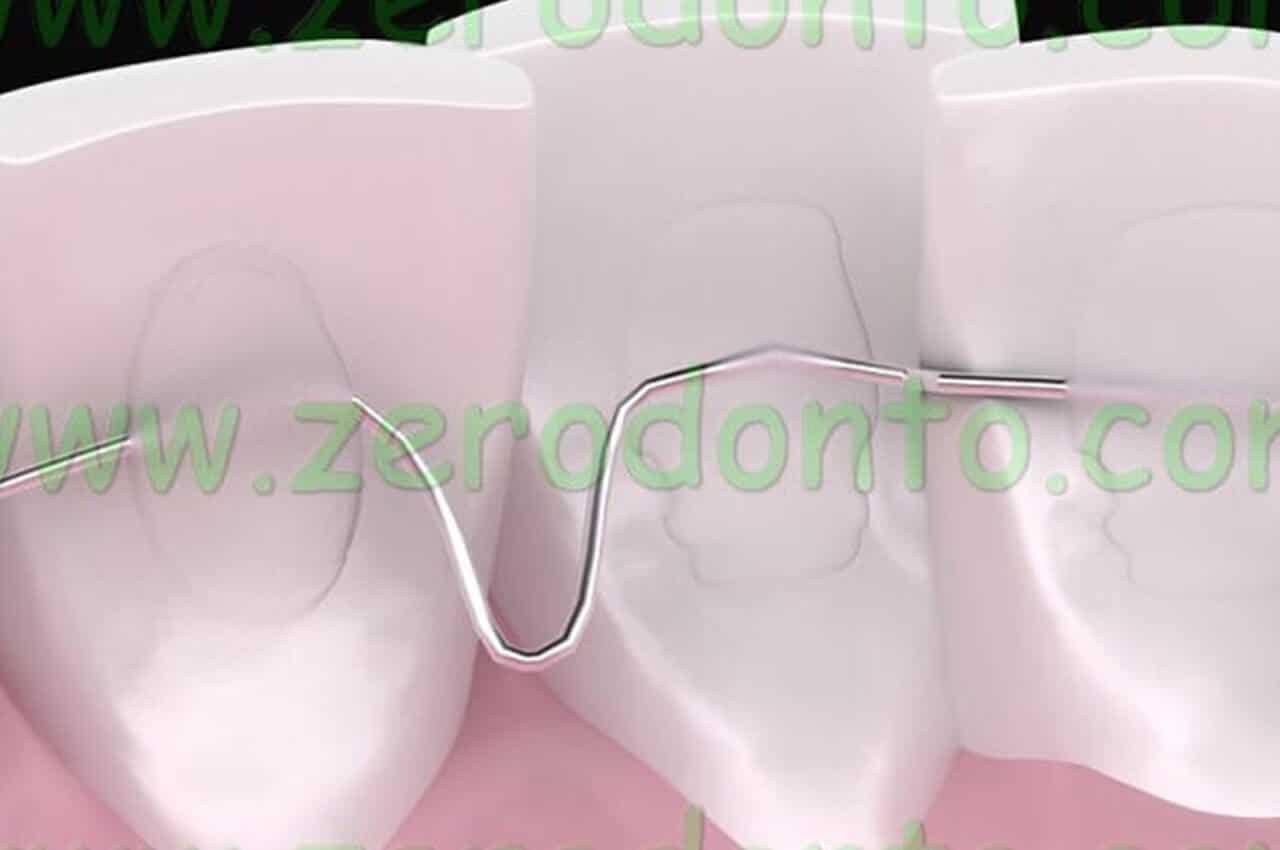 Ortodonzia Invisibile Esempi