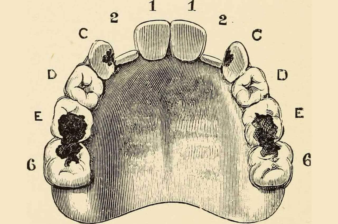 Denti Cariati, il Coraggio di Curarli