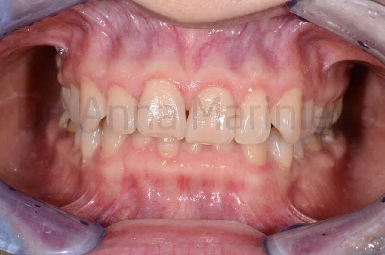 ortodonzia invisibile linguale fissa senza attacchi, morso profondo