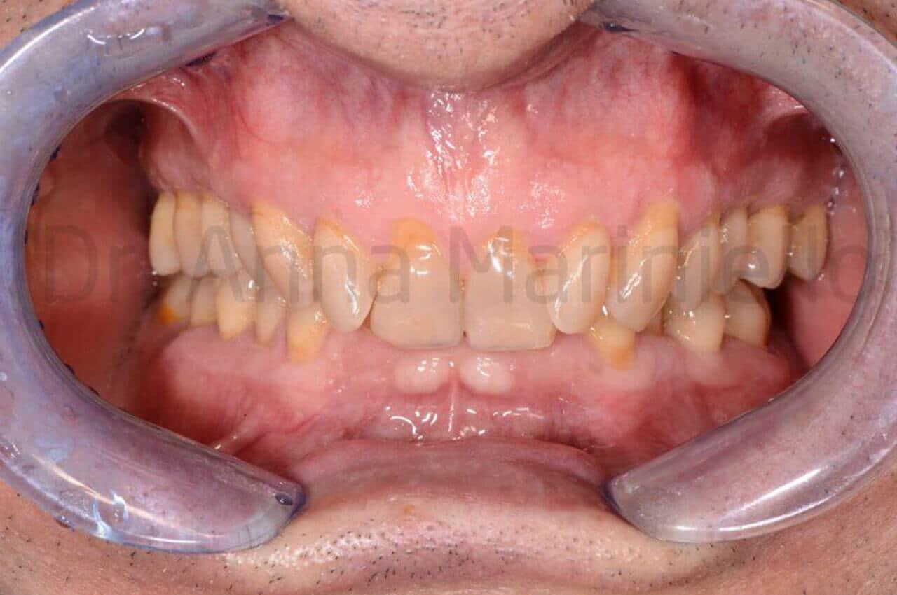 ortodonzia invisibile linguale fissa senza attacchi, morso profondo,