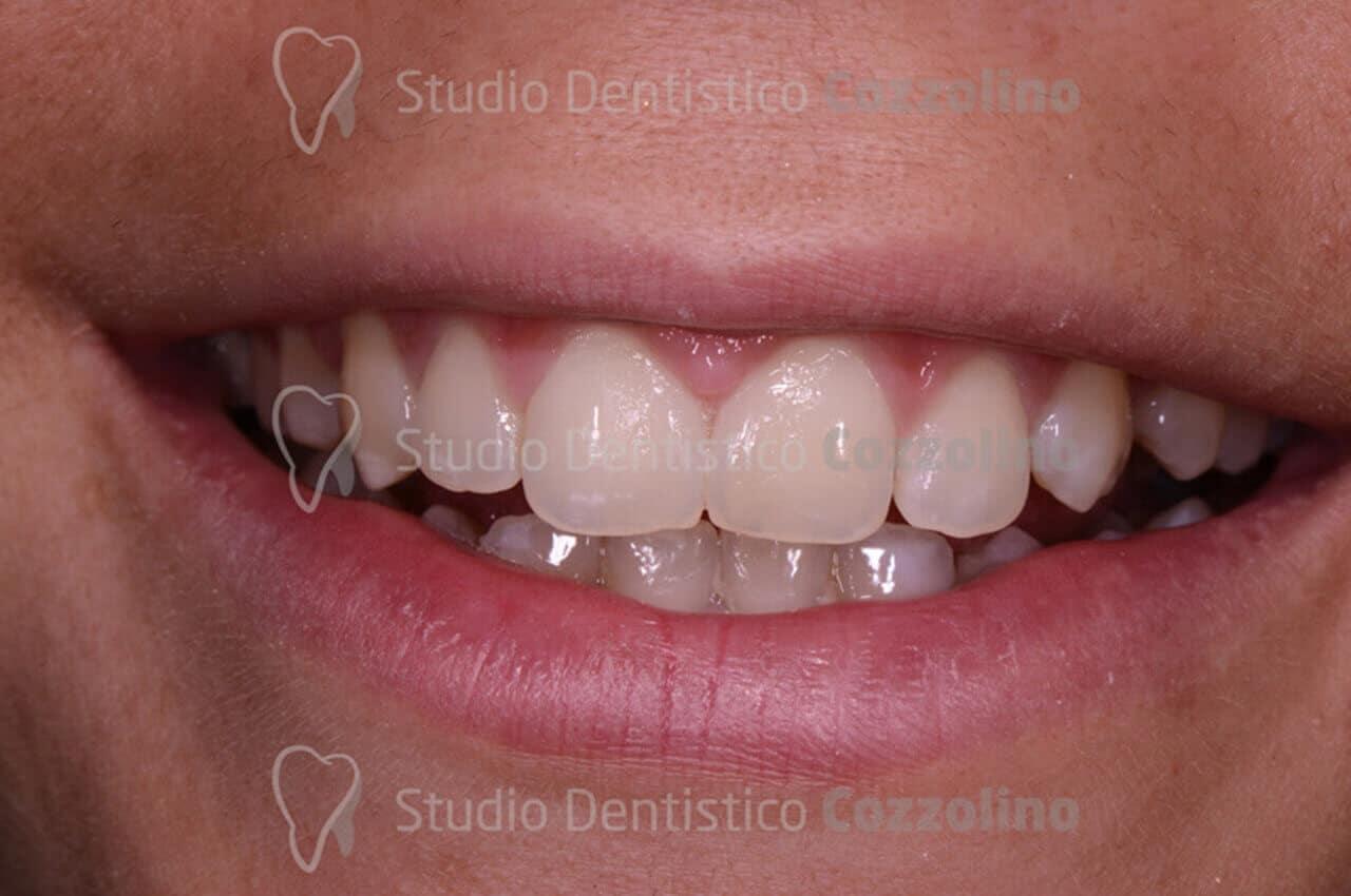 Situazione dopo la terapia ortodontica invisibile senza attacchi