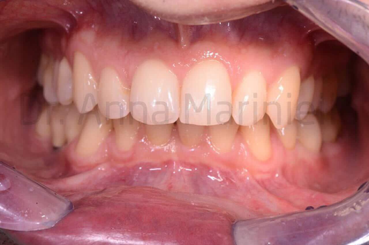 ortodonzia invisibile linguale fissa senza attacchi, morso profondo, post-terapia, ortodonzia invisibile