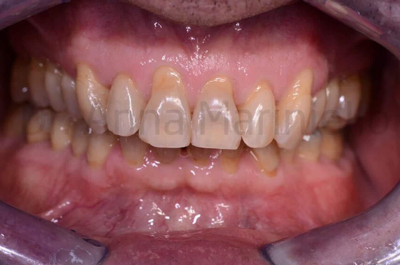 ortodonzia invisibile linguale fissa senza attacchi, morso profondo, post-terapia