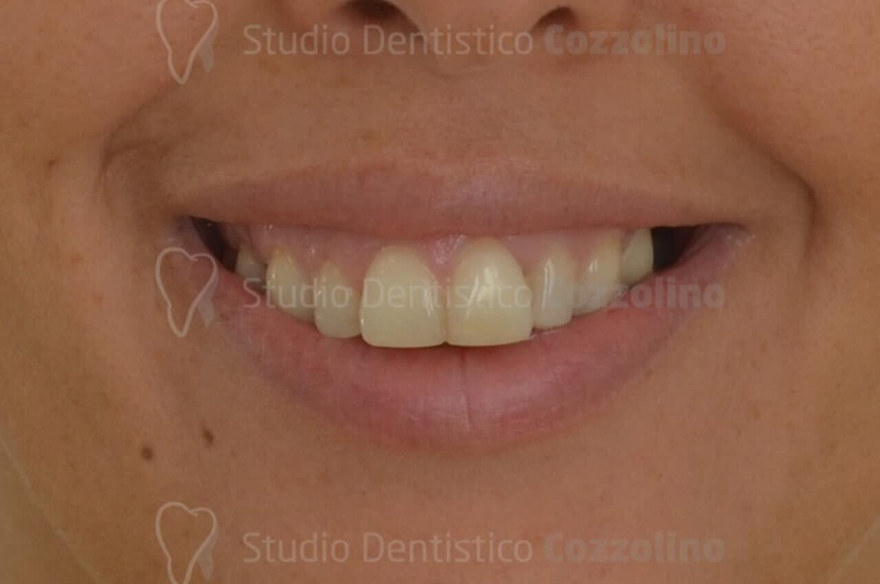 Protrusione incisivi sup