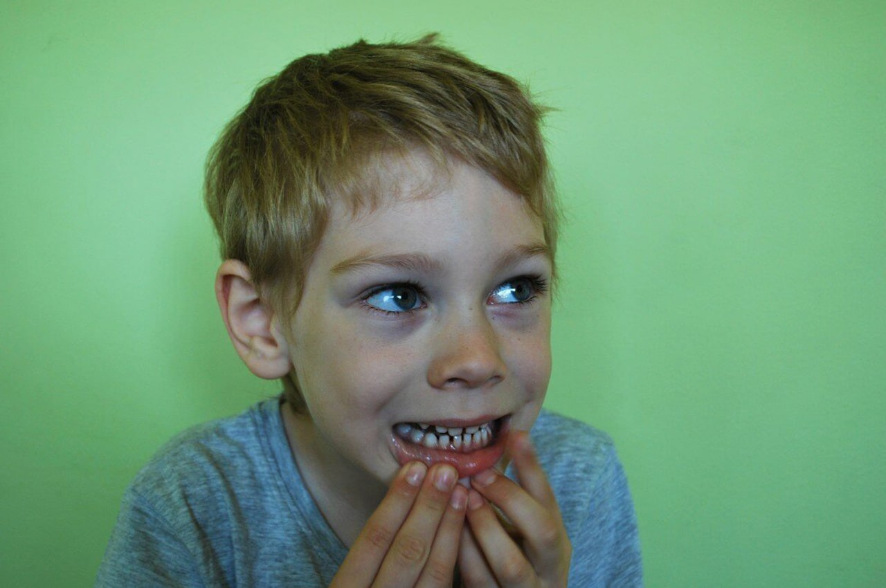 Denti Sensibili: Cause e Rimedi