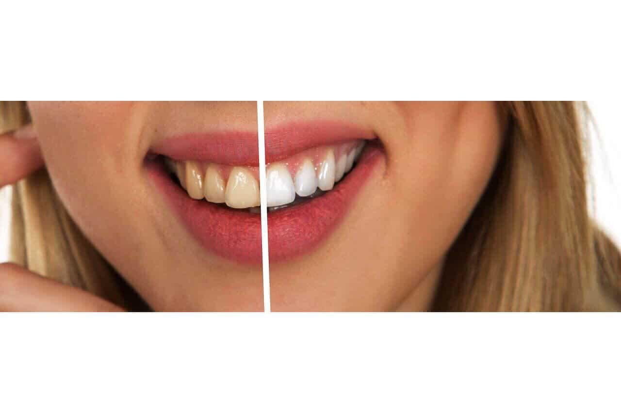 Discromie Dentali