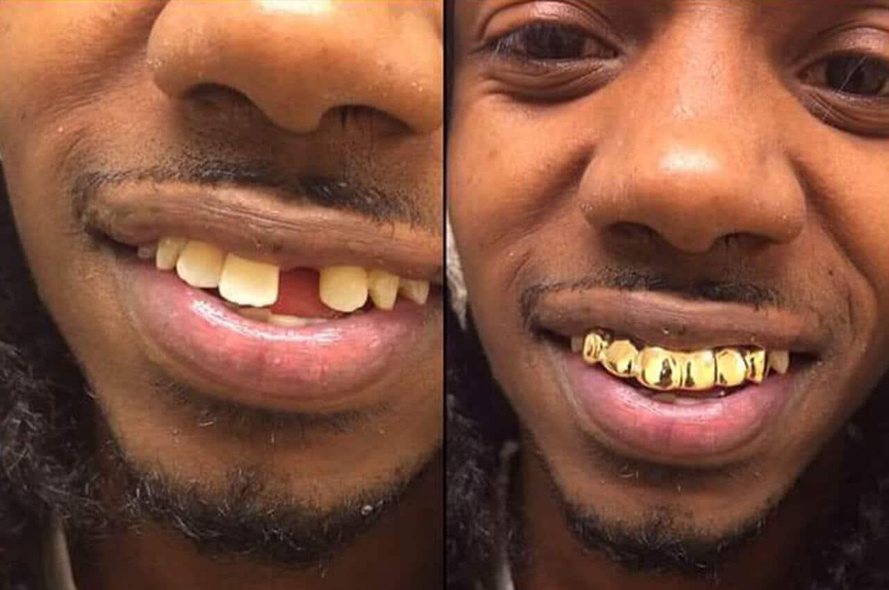 grillz come faccette dentali protesi