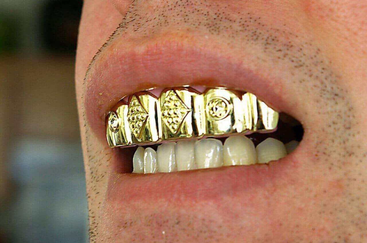 Eccezionale Grillz: protesi preziose per un sorriso da vip | Studio Dentistico  VG54