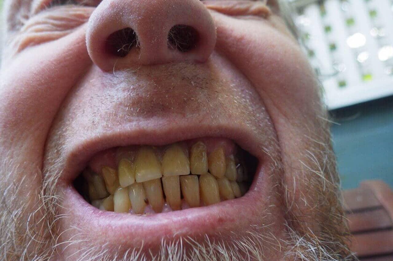 danni del fumo sui denti