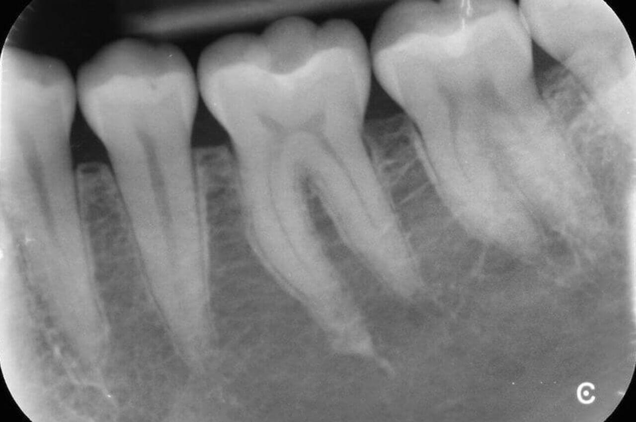 radiografia periapicale