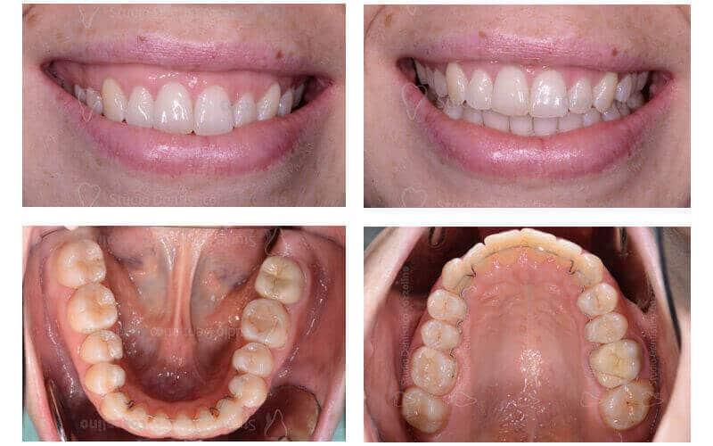 apparecchio invisibile, apparecchio linguale, gummy smile,