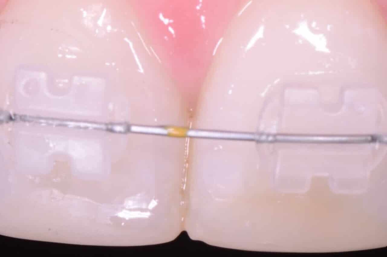 Apparecchi ortodontici con fili bianchi estetici