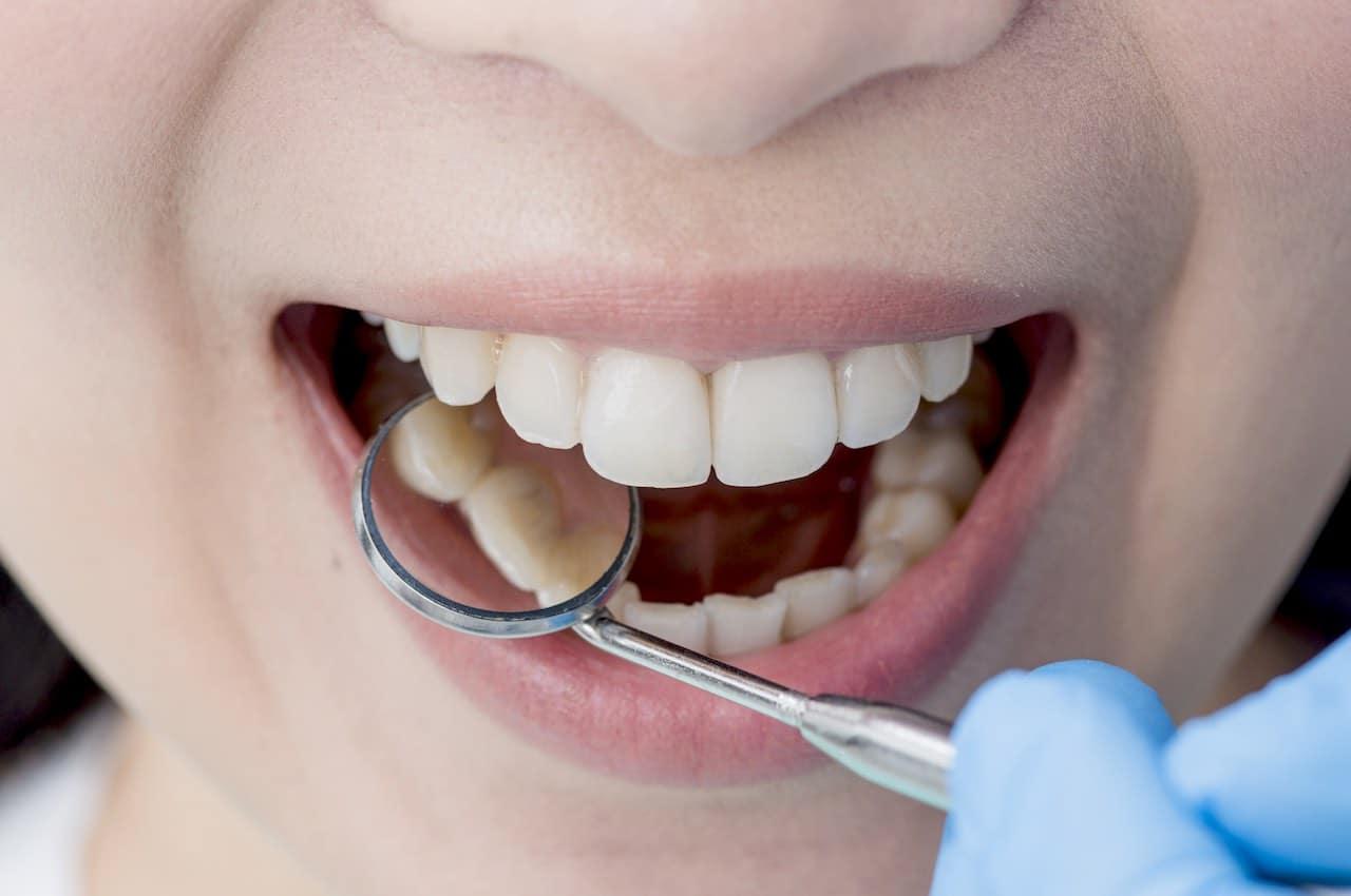 rimuovere tartaro denti