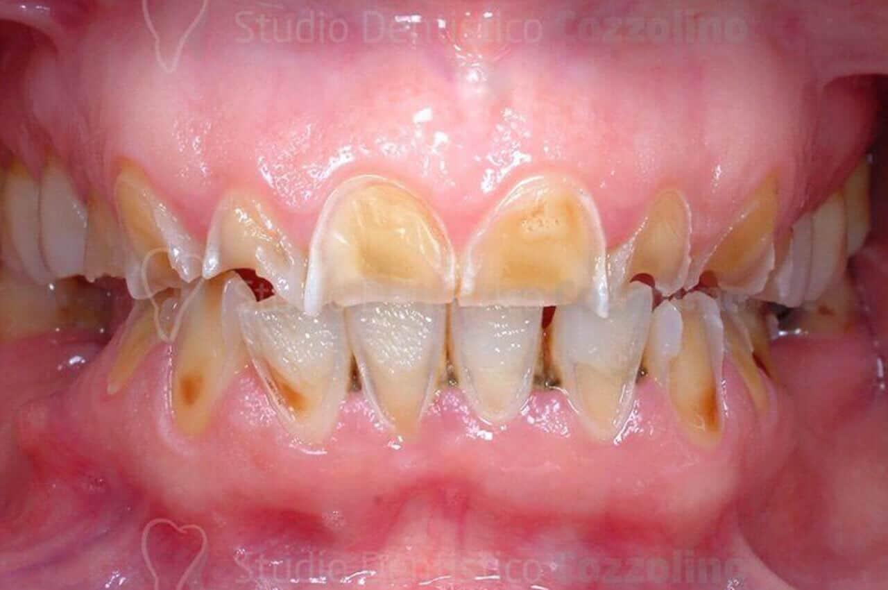 Denti Consumati Erosione Dentale
