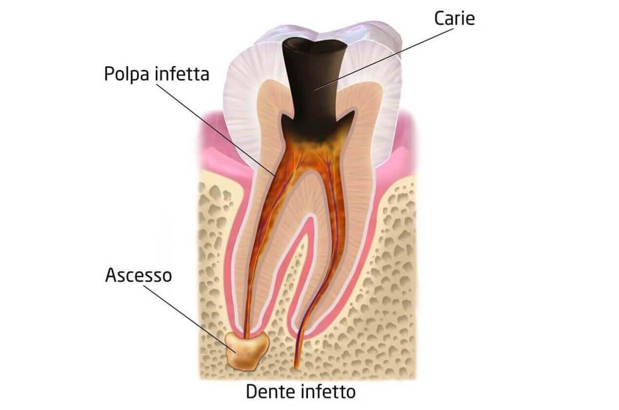 Schema Struttura Dente