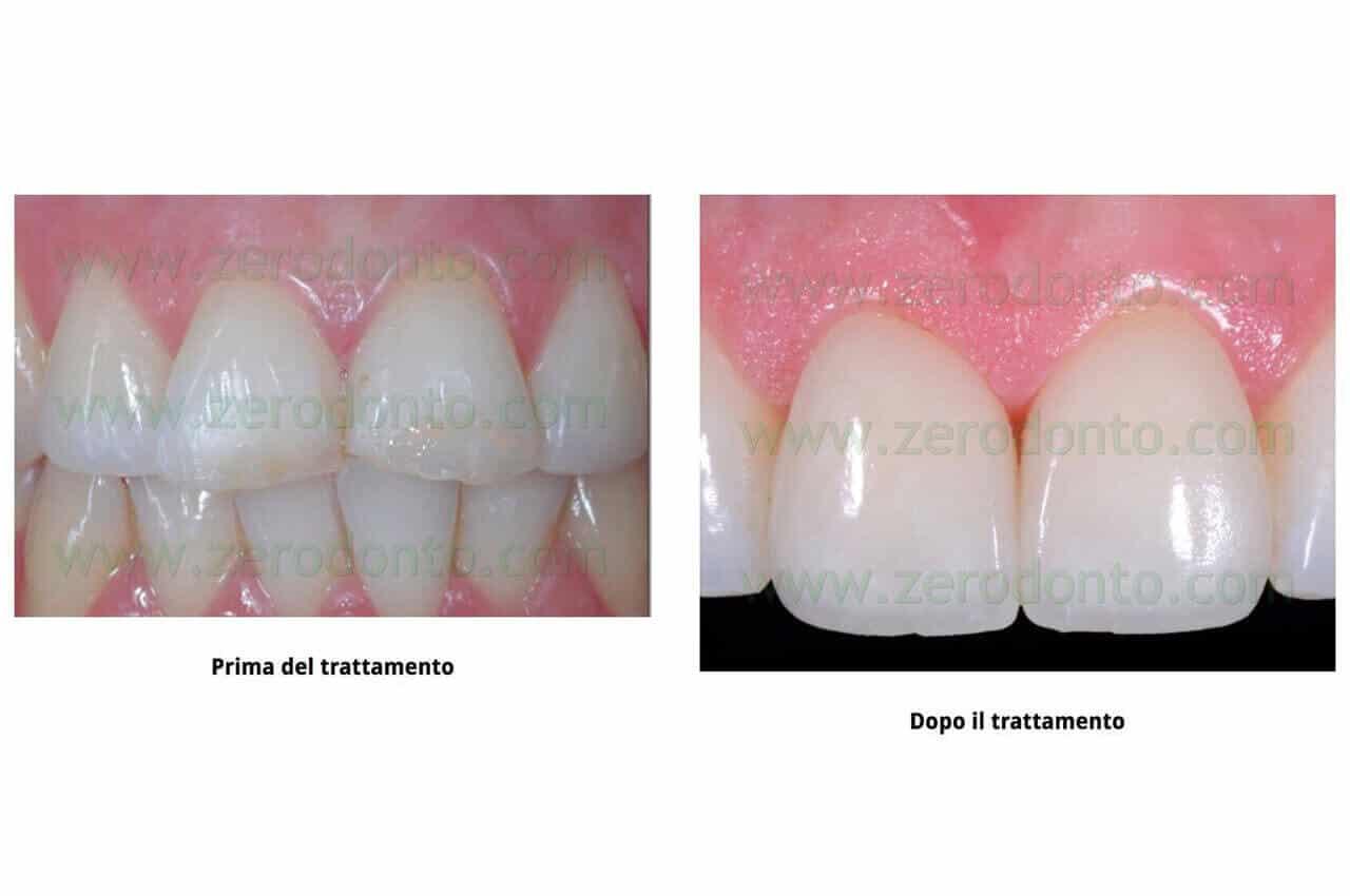 Quanto Costa Ricostruire Un Dente