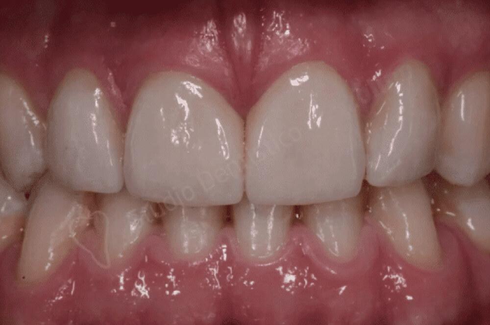 Smalto dentale, cos'è e come preservarlo