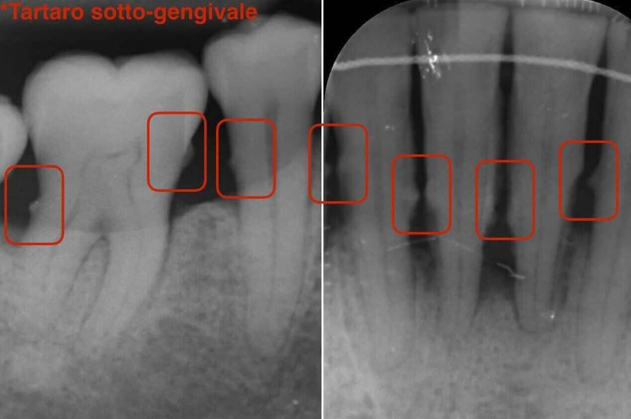 Denti Si Muovono
