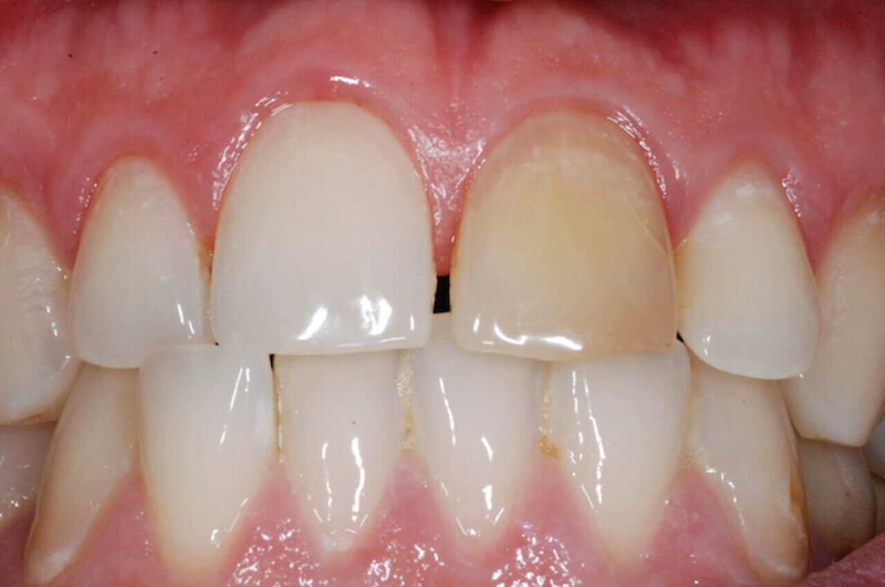 Dente Nero