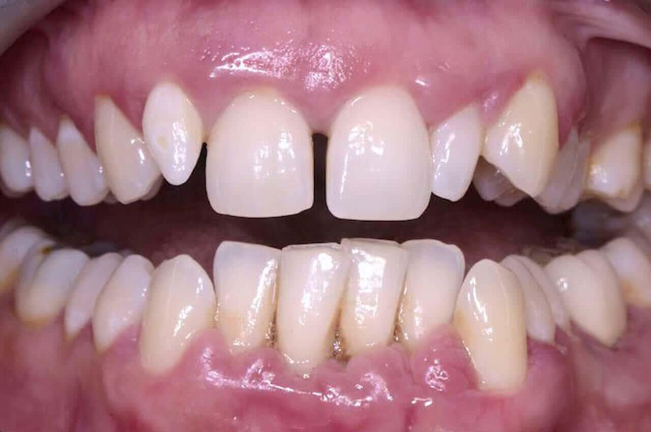 Parodontite In Gravidanza