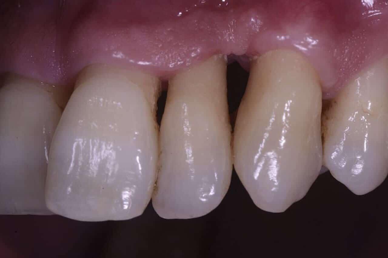 Parodontite Contagiosa