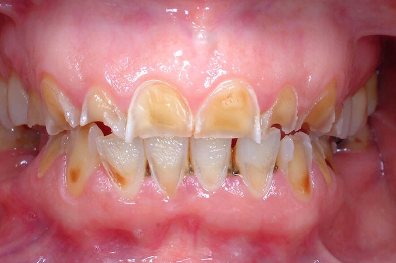 Ricostruzione dello smalto dentale