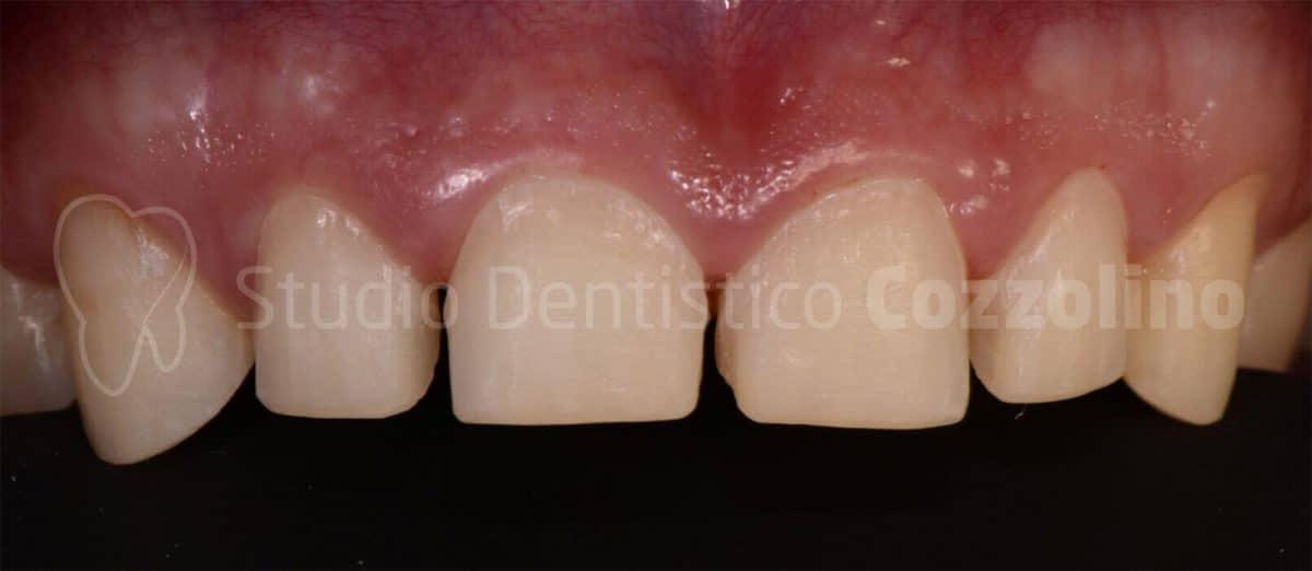 Risoluzione Di Usura Dentaria Morso Coperto Faccette Disilicato Di Litio Chiusura Sorriso