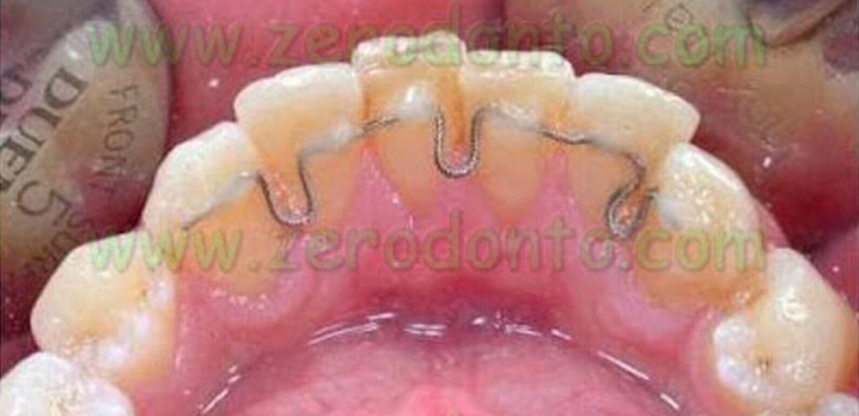 Allineare Denti Sorriso Perfetto