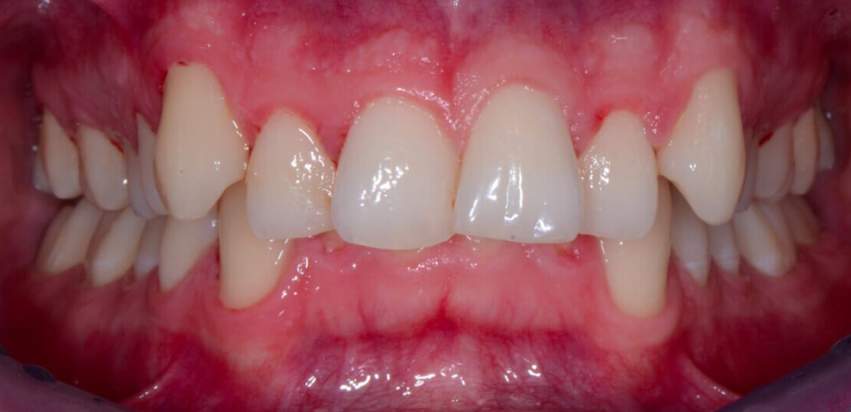 Allineare Denti Storti Sovrapposti