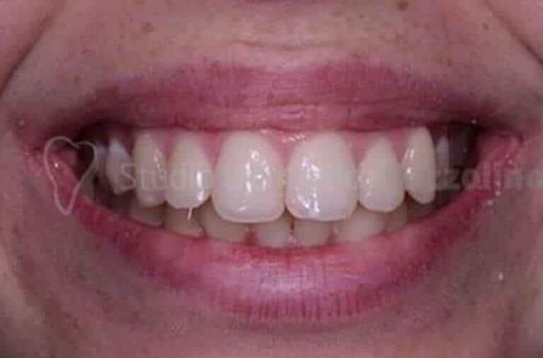 Ortodonzia Invisibile Ortodontico