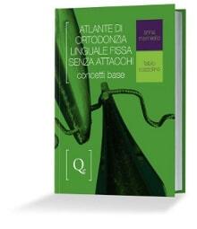 Atlante Ortodonzia Linguale Fissa Senza Attacchi