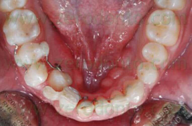 Radiografia Denti Giudizio Inclusi