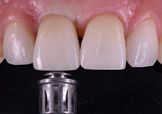 Corona Impianto Dente Centrale