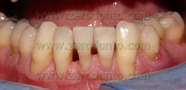 Denti Allineati Tecnica Innovativa