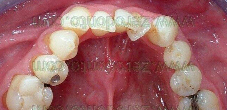 Denti Sovrapposti Affolamento
