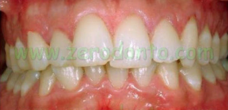 Denti Sovrapposti Affollamento Dentario