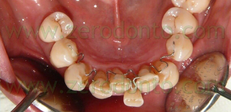 Denti Storti Casi Complicati