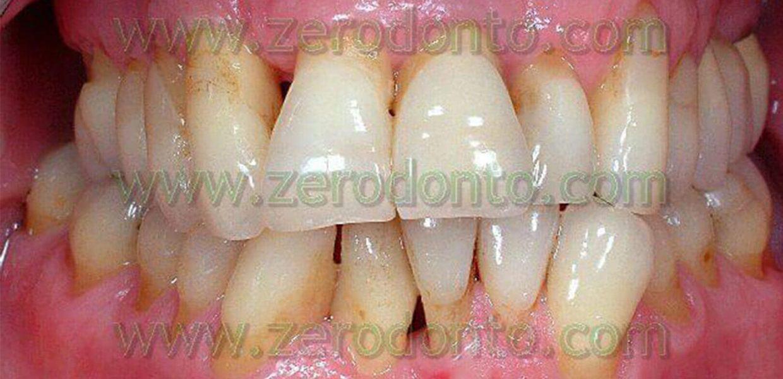 Denti Storti Sporgenti Casi