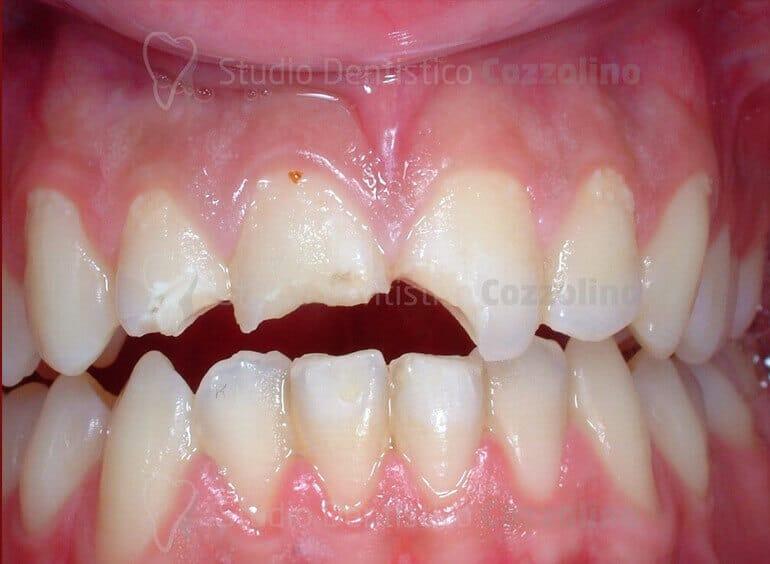 Evento Traumatico Odontoiatria Conservativa