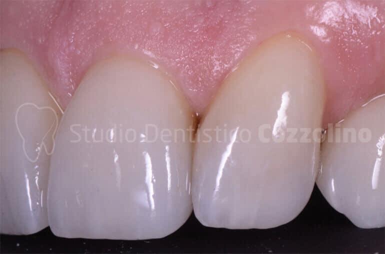 Faccette Dentali Estetiche Su Denti Anteriori Dopo