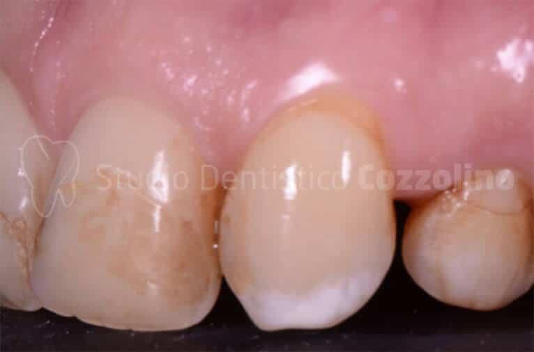 Faccette Dentali Estetiche Su Denti Anteriori Prima
