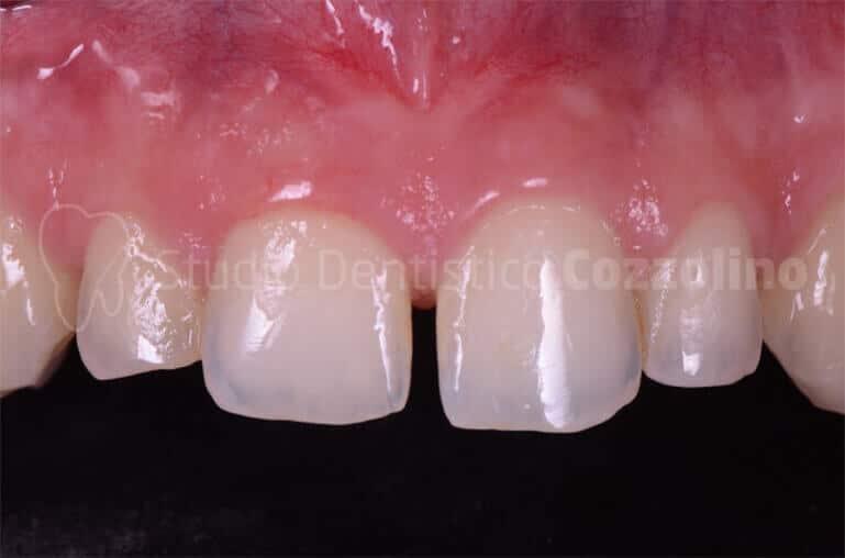 Faccette Disilicato Litio Presenza Diastemi Alterate Proporzioni Dentarie Laterale Proporzioni