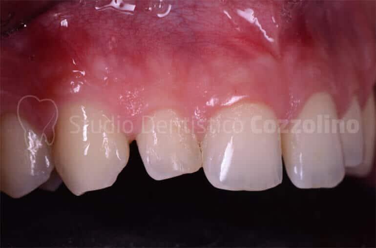 Faccette Disilicato Litio Presenza Diastemi Alterate Proporzioni Dentarie Laterale Prima