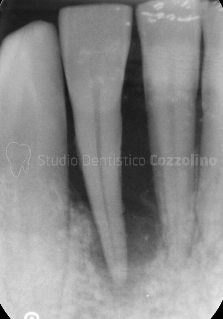 Hopeless Gengiva Radiografia Parodontite Prima