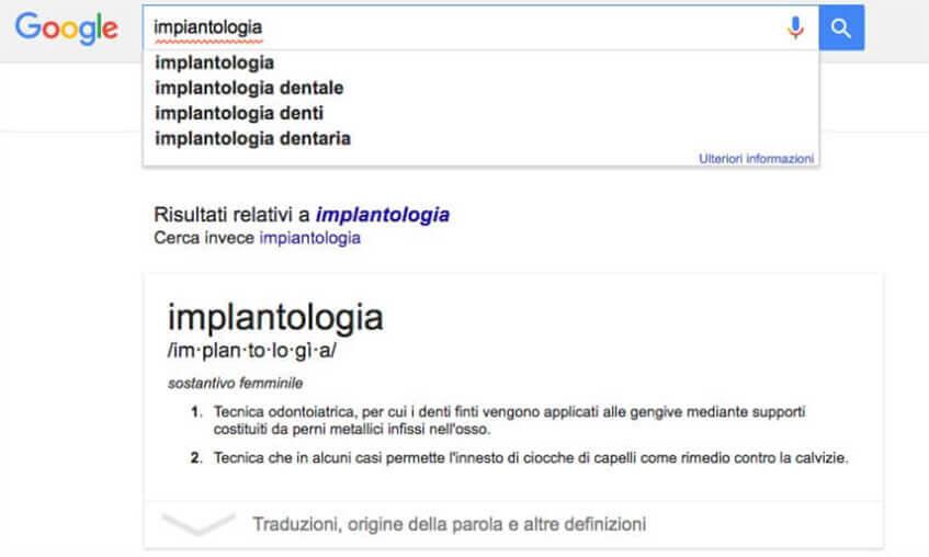 implantologia su google