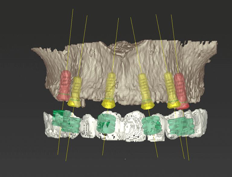 Implantologia Guidata Carico Immediato