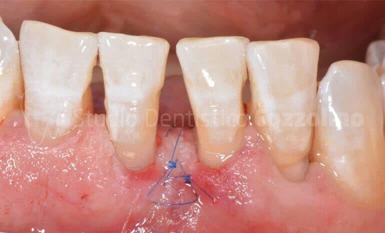 Intervento Miniinvasivo Rigenerazione Ossea Mist Parodontite