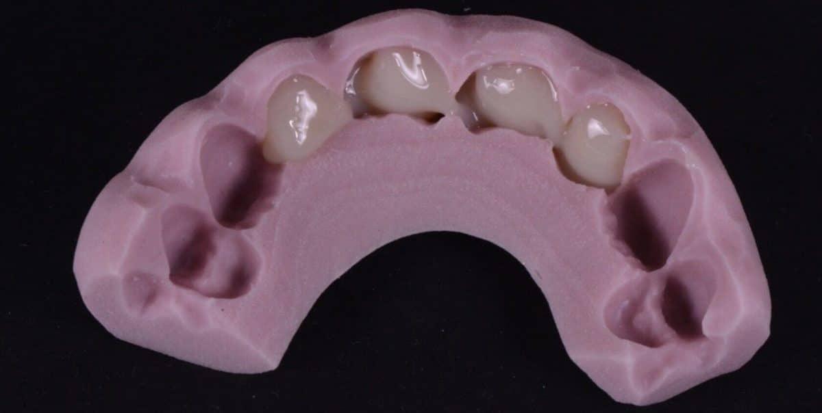 Mock-up Tridimensionale Denti